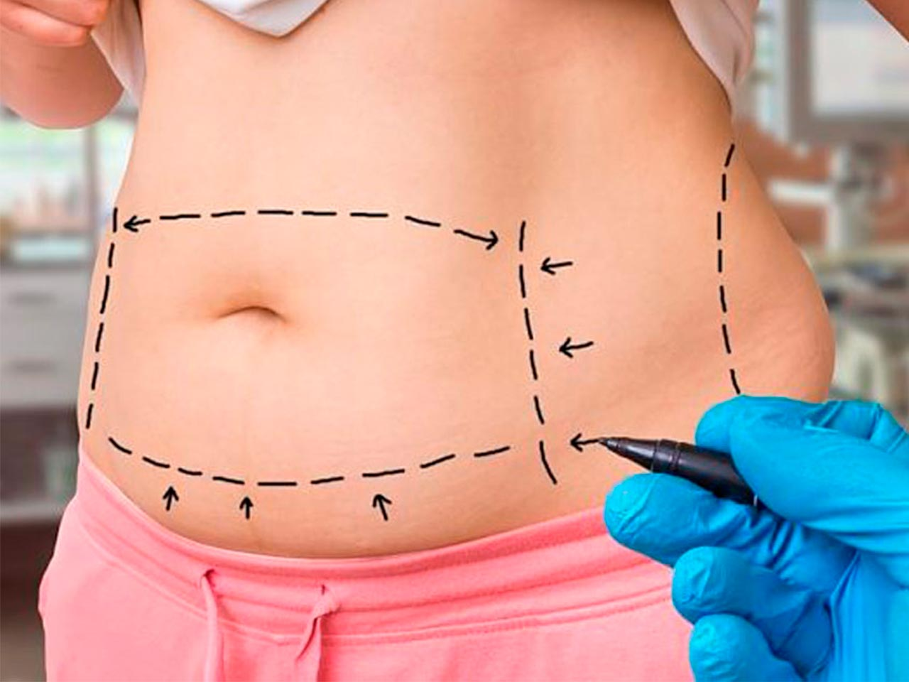 Make your waist look slimmer with lipo