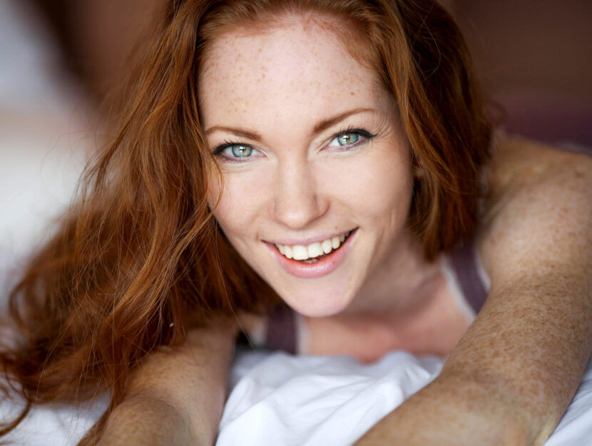 love young freckles
