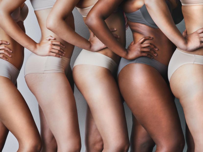 girls with stretch marks