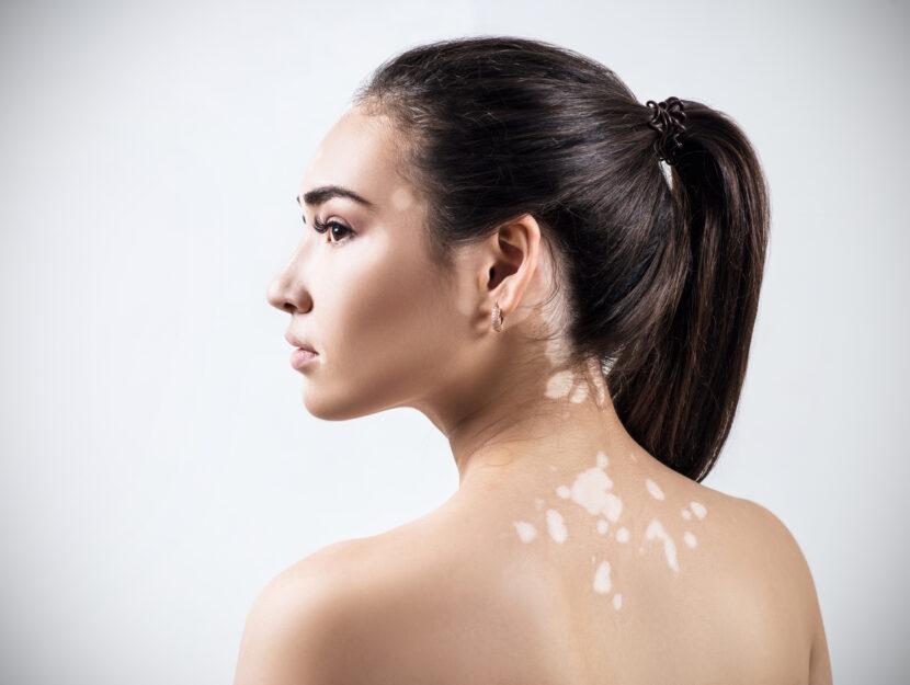 Vitiligo sun protection